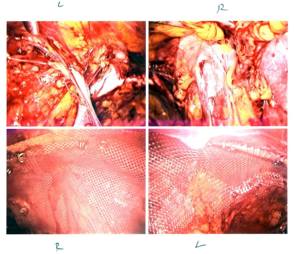 Surviving Laparoscopic Bilateral Hernia Surgery